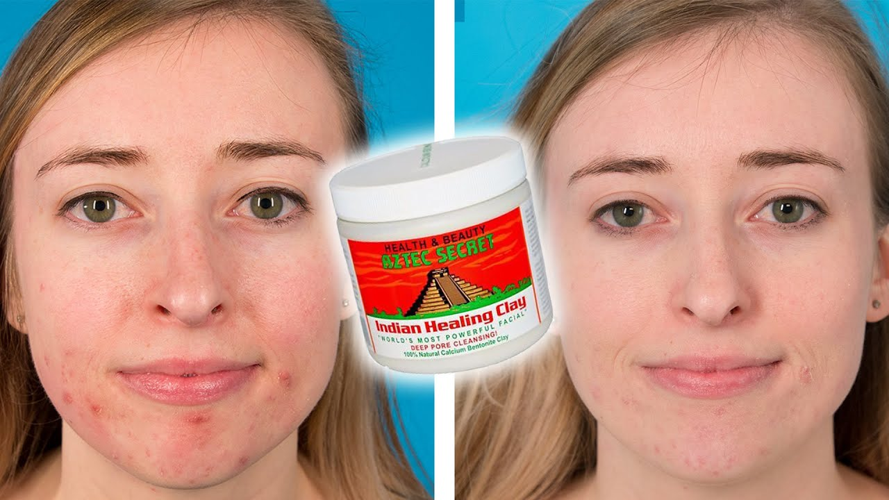 Aztec Clay Mask For Acne