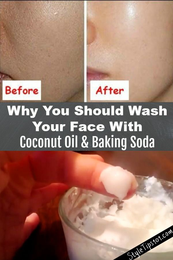 Coconut oil and baking soda face mask