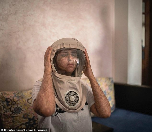Fatima Ghazaoui, 28, from Mohammedia, Morocco, was diagnosed with the rare skin condition xeroderma pigmentosum at two-years-old and now wears a 'space helmet' to protect her skin