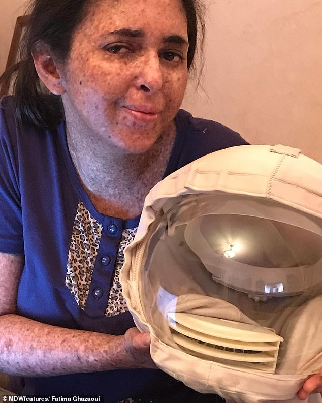 Fatima hasn't been out in daylight for over 20 years without wearing sun protection in the form of gloves and a helmet, which she affectionately calls her 'NASA mask'