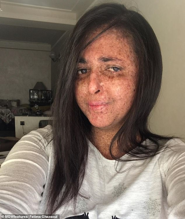 The condition means Fatima is easily sunburnt, even on a mild or cloudy day, and suffers with severe freckles, while having visible signs of dry skin and skin ageing